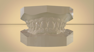 Digital Orthodontic Study Models