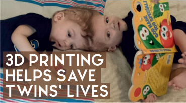 3D Printing Helps Save Twins' Lives