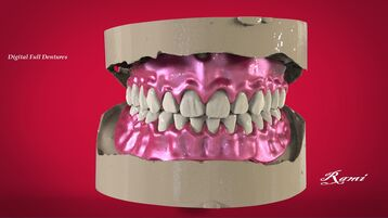 Digital Complete Dentures