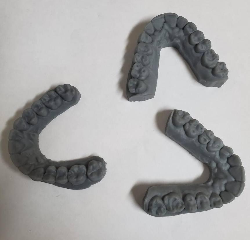 Resin dentals.jpg