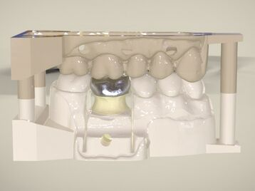 Digital Dental Quadrant Model